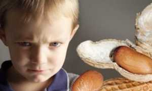 Как проявляется аллергия на арахис